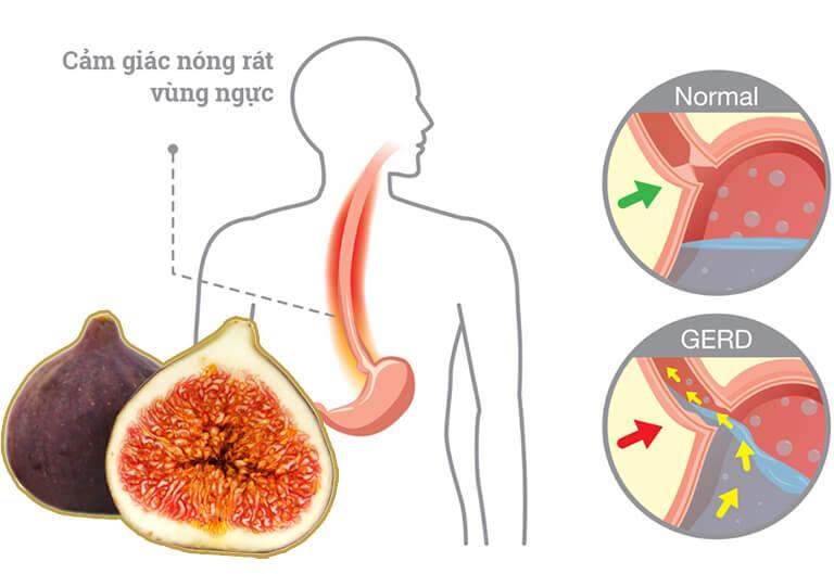Quả sung chữa trào ngược dạ dày được không?