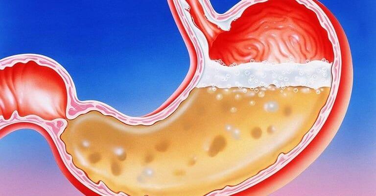 Axit dạ dày là gì?