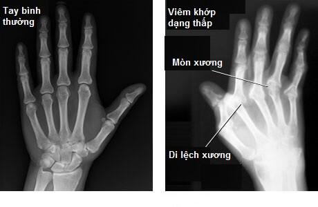 Ảnh X quang viêm khớp dạng thấp