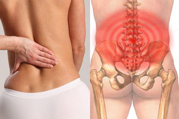 Đau lưng dưới gần mông là vị trí có rất nhiều người bị