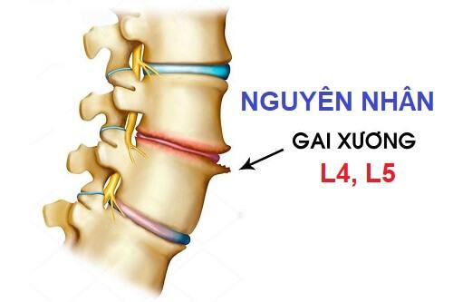 Gai cột sống l4 l5 và giải pháp can thiệp triệt để