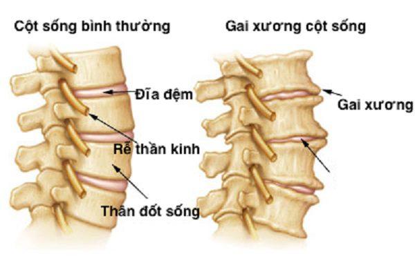 Gai đôi cột sống lưng