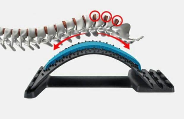 Khung nắn chỉnh cột sống loại nào tốt?