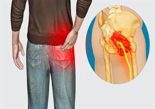 Bị đau nhức từ mông lan xuống chân có nguy hiểm?
