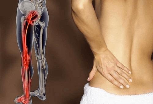 Đau nhức từ mông xuống bắp chân là bệnh gì?