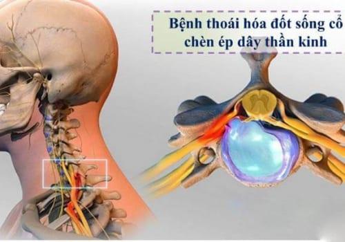 Thoái hóa đốt sống cổ chèn dây thần kinh là bệnh gì