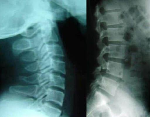 Hình ảnh x quang thoái hóa cột sống