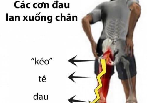 Đau lưng lan xuống mông, chân là bệnh gì