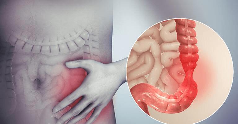Tìm hiểu về bệnh viêm đại tràng co thắt