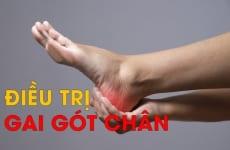 Gai gót chân là gì? Nguyên nhân