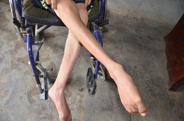 Thoát vị đĩa đệm gây teo chân khi nào?