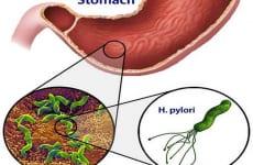 Tìm hiểu vi khuẩn HP là gì?