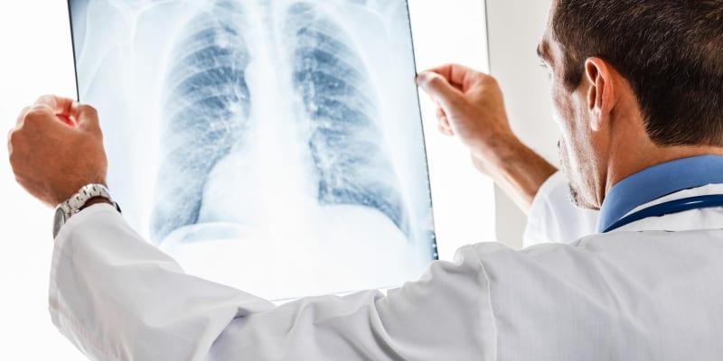 Tìm hiểu về hội chứng đông đặc phổi là gì?