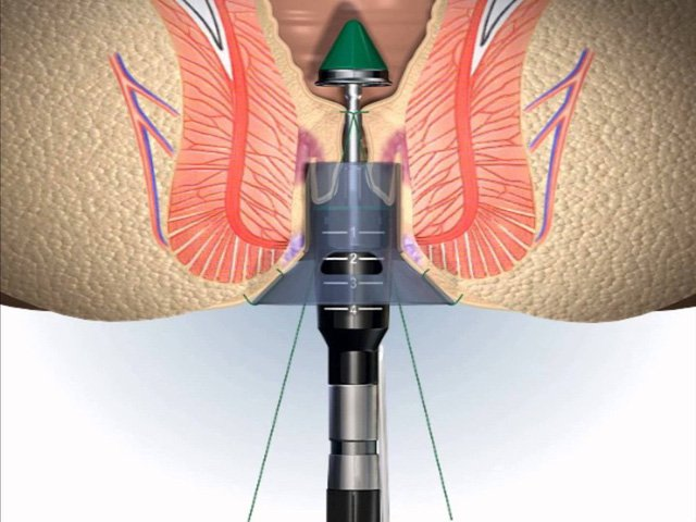 Phương pháp phẫu thuật trĩ vòng Longo