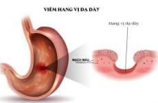 Tìm hiểu bệnh lý viêm hang vị dạ dày