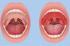 Tìm hiểu bệnh viêm họng hạt ở lưỡi