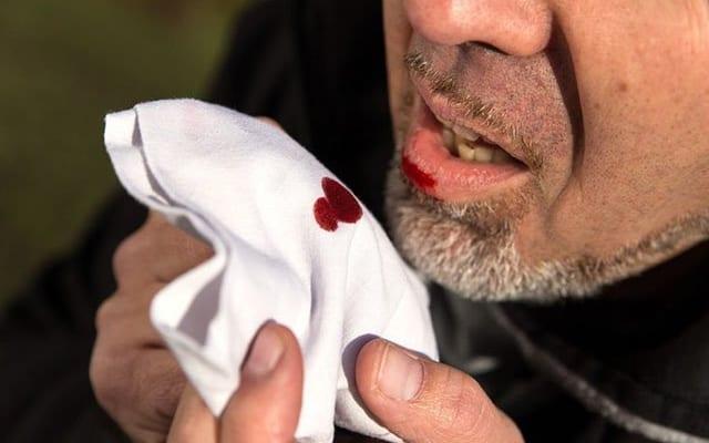 Viêm họng ho ra máu có nguy hiểm không?