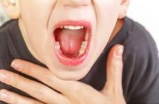 Tìm hiểu về bệnh Viêm họng mủ ở trẻ em