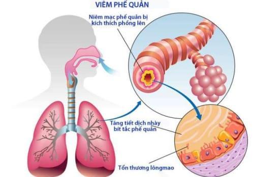 Tìm hiểu bệnh viêm phế quản