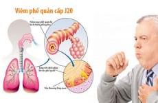 Tìm hiểu về viêm phế quản cấp j20