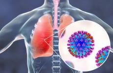 Tìm hiểu về bệnh lý viêm phổi