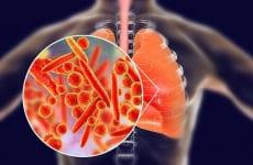 Bệnh viêm phổi có lây không?