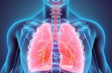 Viêm phổi mắc phải ở cộng đồng là gì?