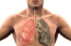 Tìm hiểu viêm phổi hít là gì?