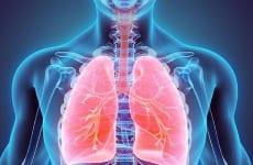 Tìm hiểu viêm phổi thùy là bệnh gì?