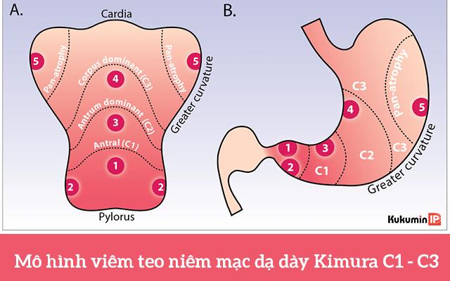 Tìm hiểu về bệnh viêm teo niêm mạc dạ dày