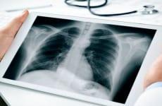 Những lưu ý khi chụp X quang viêm phế quản